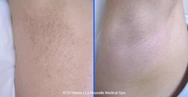 Laser Hair Removal Before and After Photos | Oxnard, Ventura